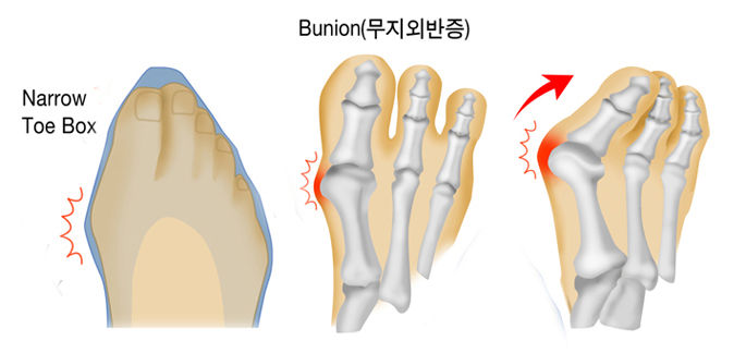 Narrow Toe Box, Bunion(무지외반증)