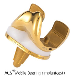 ACS Mobile Bearing (Implantcast)